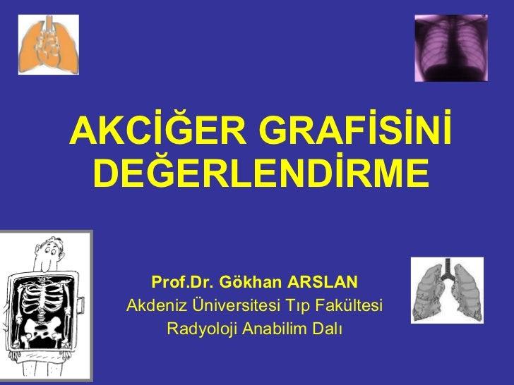 AKCİĞER GRAFİSİNİ DEĞERLENDİRME Prof.Dr. Gökhan ARSLAN Akdeniz Üniversitesi Tıp Fakültesi Radyoloji Anabilim Dalı