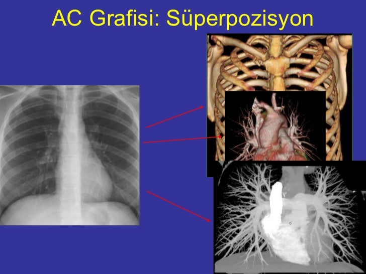 Akciğer Grafisi değerlendirilmesi Slide 3