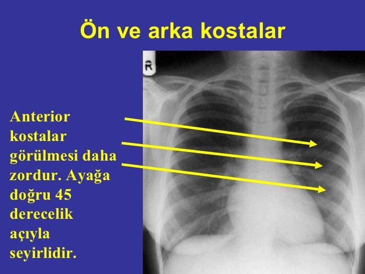 Akciğer Grafisi Değerlendirilmesi