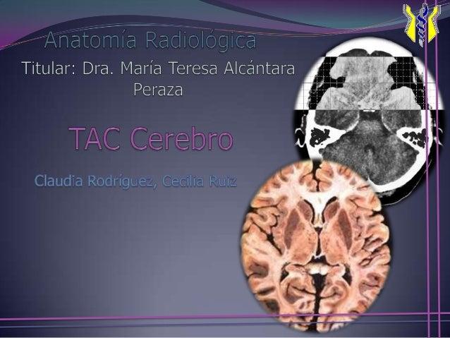 1, Seno maxilarderecho.2, Tabique nasal.3, Seno maxilarizquierdo.4, Nasofaringe.5, Conducto auditivoexterno.6,Foramen magn...
