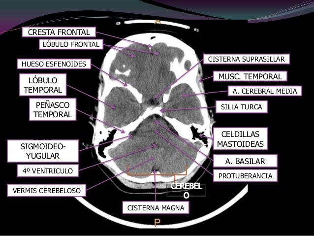 1, Circunvolucionesfrontales.2, Músculo rectoexterno.3, Cornete nasal.4, Seno maxilar.