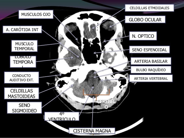 1,   Circunvoluciones frontales.2,   Arco cigomático.3,   Mandíbula.4,   Cornete nasal.5,   arco alveolar.6,   Seno maxila...