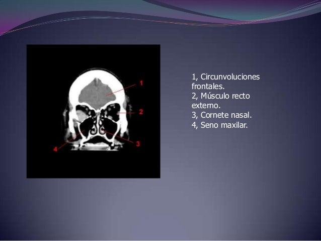 1, Cisura longitudinal.2, Circunvoluciones frontales.3, Cuerpo calloso.4, Ventriculo lateral.5, Circunvoluciones temporale...