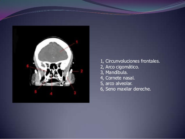 1, Cisura longitudinal / Hoz cerebral.2,Circunvolución frontal superior.3, Nucleo caudado.4, III° ventriculo.5,Arteria bas...