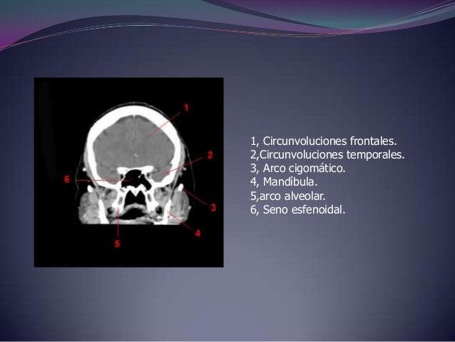 1, Circunvolución frontal superior.2, Seno longitudinal (sagital) superior.3, Ventriculo lateral.4, III° ventriculo.5,Circ...