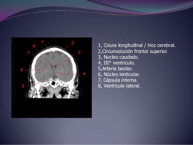 1, Seno longitudinal (sagital)superior.2,Cisura longitudinal / Hoz cerebral.3, Plexo coroide.4, IV° ventriculo.5, Cerebelo...