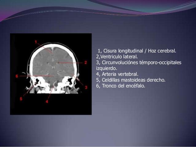 1, Seno maxilar.2, Globo ocular.3,Circunvoluciones frontales.4, Ventriculo lateral / Plexo coroideo.5,Circunvoluciones tem...