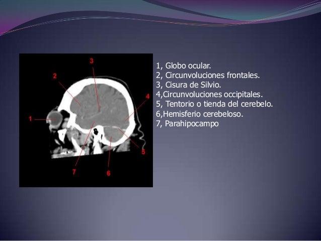 1, Orofaringe.2, Cornete nasal.3,Circunvoluciones frontales.4, Cuerpo calloso.5, Ventriculo lateral.6,Tronco del encéfalo....