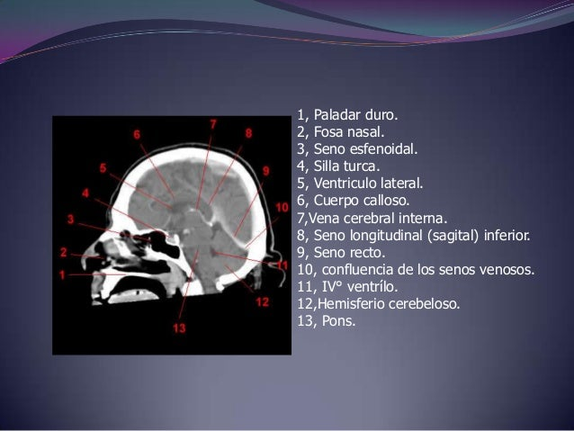 Imagenología(TAC) Cerebro