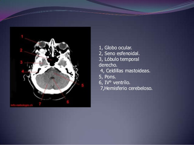 1, Nucleo caudado2, Brazo anterior de la cápsulainterna 3, Núcleo lenticular. 4, Seno longitudinal (sagital)inferior.5,Sen...