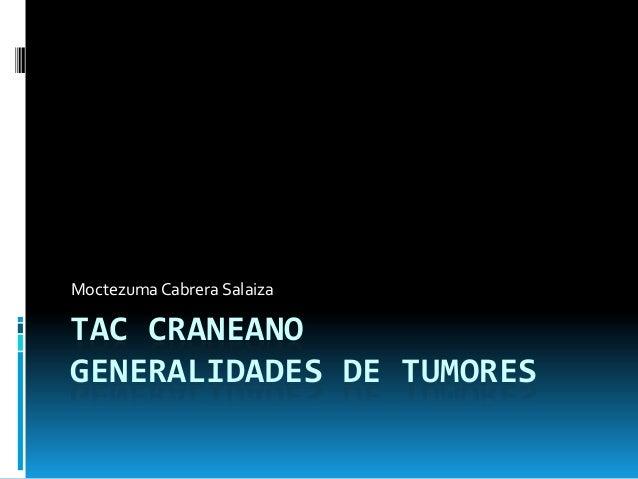 Moctezuma Cabrera Salaiza  TAC CRANEANO GENERALIDADES DE TUMORES