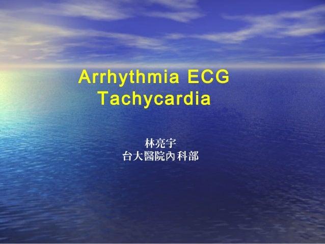 Arrhythmia ECG Tachycardia 林亮宇 台大醫院 科部內