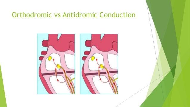 Orthodromic vs Antidromic Conduction