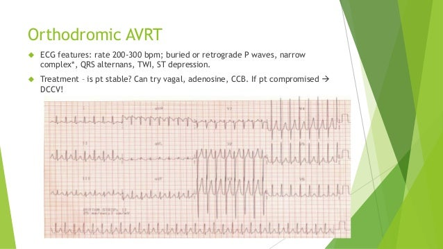 Orthodromic AVRT   ECG features: rate 200-300 bpm; buried or retrograde P waves, narrow  complex*, QRS alternans, TWI, ST...