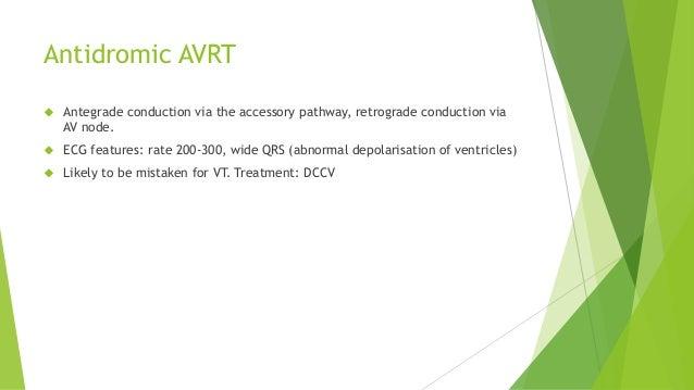 Antidromic AVRT   Antegrade conduction via the accessory pathway, retrograde conduction via  AV node.   ECG features: ra...