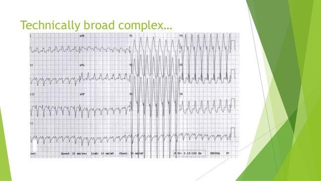 Technically broad complex…