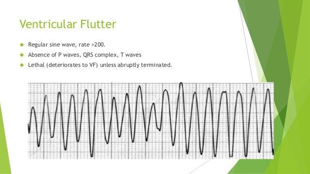 Ventricular Flutter   Regular sine wave, rate >200.   Absence of P waves, QRS complex, T waves   Lethal (deteriorates t...
