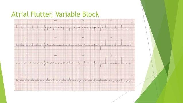 Atrial Flutter, Variable Block