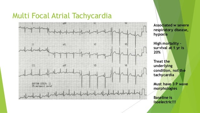 Multi Focal Atrial Tachycardia  Associated w severe  respiratory disease,  hypoxia  High mortality –  survival at 1 yr is ...