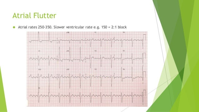 Atrial Flutter   Atrial rates 250-350. Slower ventricular rate e.g. 150 = 2:1 block