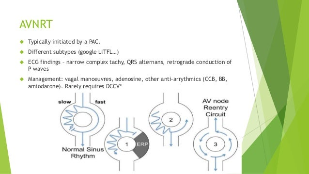 AVNRT   Typically initiated by a PAC.   Different subtypes (google LITFL…)   ECG findings – narrow complex tachy, QRS a...