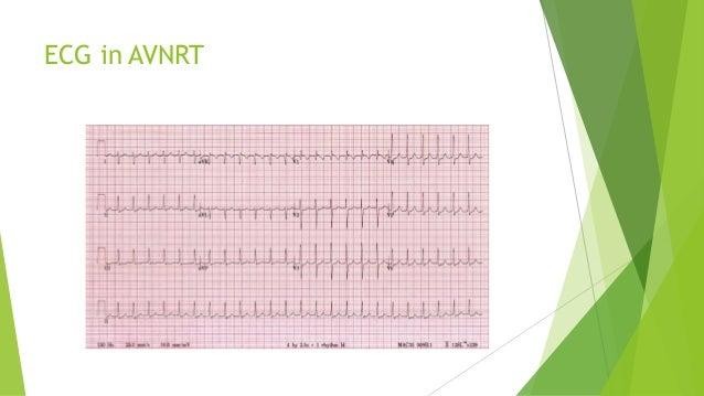 ECG in AVNRT
