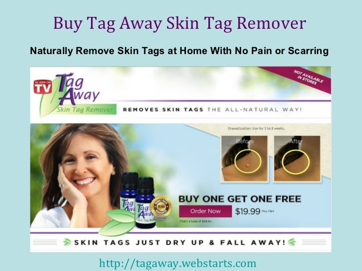 Buy Tag Away Skin Tag RemoverNaturally Remove Skin Tags at Home With No Pain or Scarring             http://tagaway.websta...