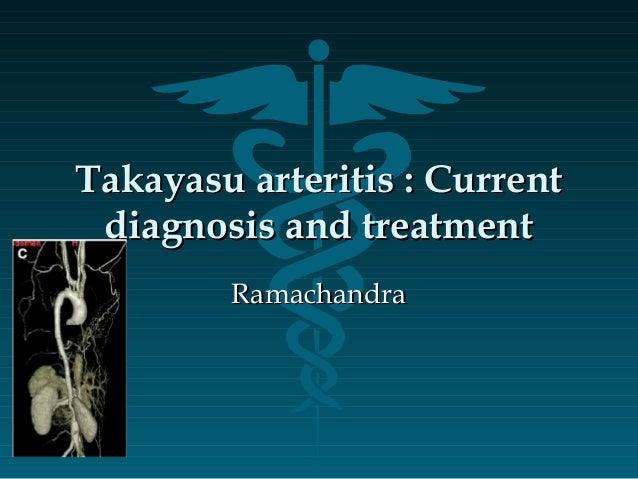 Takayasu arteritis : CurrentTakayasu arteritis : Current diagnosis and treatmentdiagnosis and treatment RamachandraRamacha...