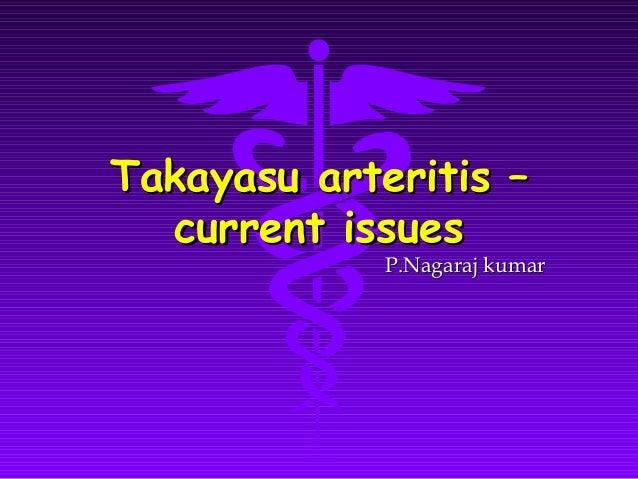 Takayasu arteritis –  current issues             P.Nagaraj kumar
