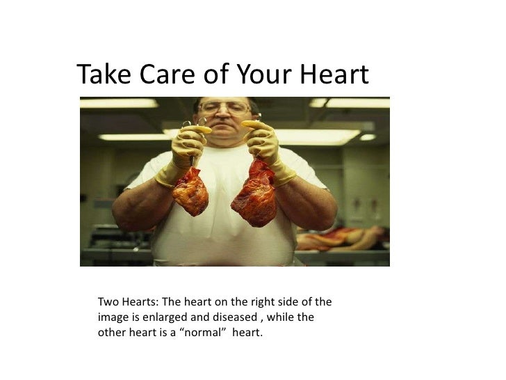 Take Care of Your Heart<br />Two Hearts: The heart on the right side of the image is enlarged and diseased , while the oth...