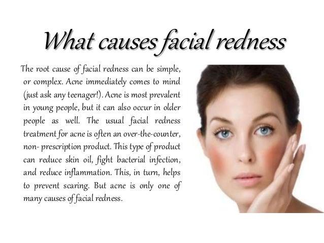 Treating facial redness