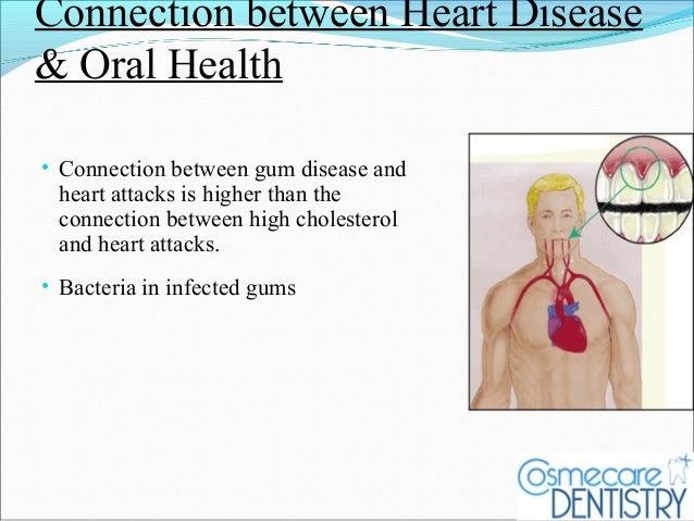 relationship between oral health heart disease