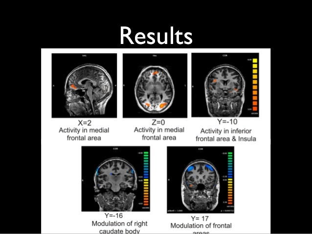 "functional magnetic resonance imaging and phrenology essay Essay assignment ii nov 28th, 2012 discuss whether the functional magnetic resonance imaging (fmri) is a new form of ""phrenology"" is it reliable enough to be used as evidence in court."