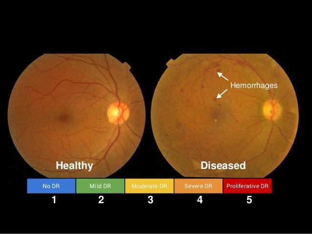 Healthy Diseased Hemorrhages No DR Mild DR Moderate DR Severe DR Proliferative DR 1 2 3 4 5