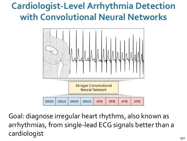 Cardiologist-Level Arrhythmia Detection with Convolutional Neural Networks 150 Goal: diagnose irregular heart rhythms, als...