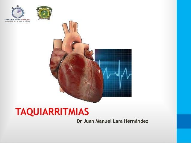 TAQUIARRITMIAS Dr Juan Manuel Lara Hernández
