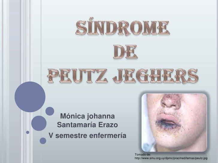 Mónica johanna   Santamaría Erazo V semestre enfermería                          Tomado de:                         http:/...