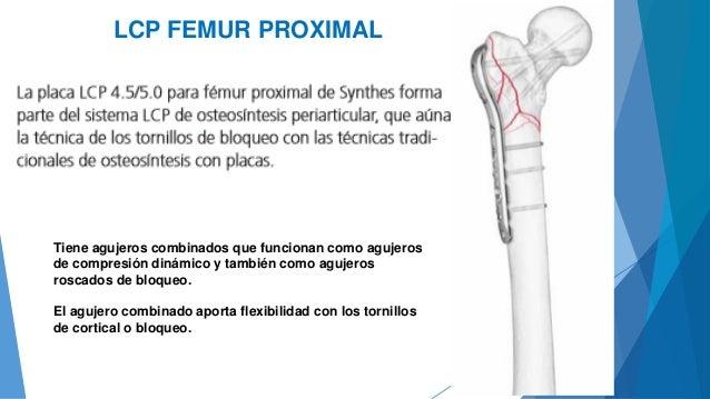 Osteosintesis Proximal de Femur