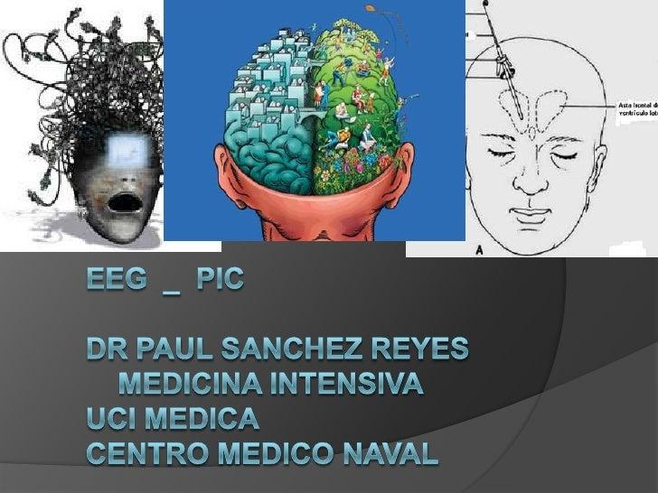 Electroencefalograma:        Registro de la actividad eléctrica cerebral      desde la superficie craneana.        Cuand...