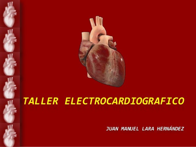 TALLER ELECTROCARDIOGRAFICO             JUAN MANUEL LARA HERNÁNDEZ