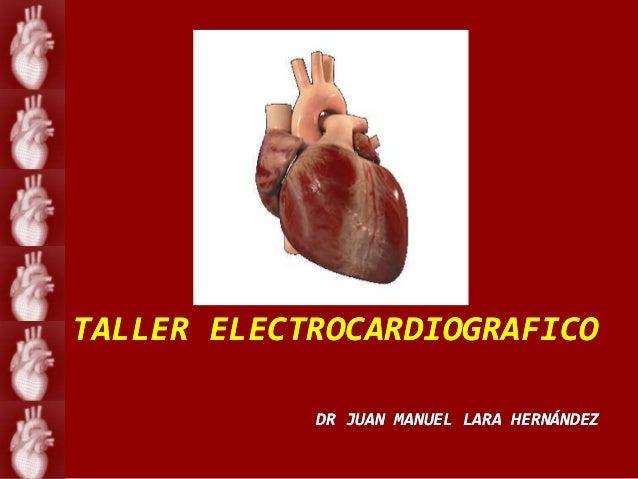 TALLER ELECTROCARDIOGRAFICO            DR JUAN MANUEL LARA HERNÁNDEZ