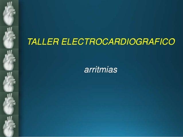 TALLER ELECTROCARDIOGRAFICO arritmias