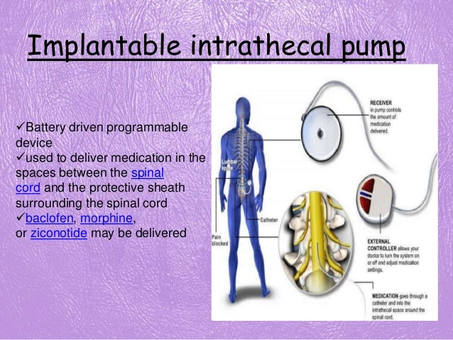 Watch additionally Classifications Of Dc Machines as well V ATPase besides Hydraulic And Pneumatic Control Elements moreover 192049890449. on pump schematic