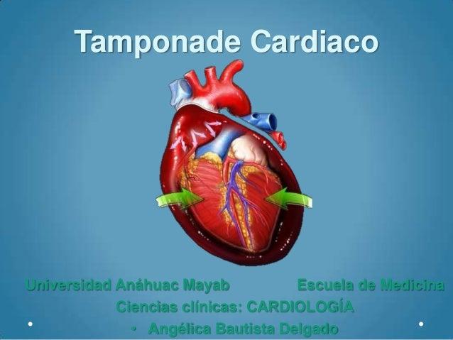 Tamponade CardiacoUniversidad Anáhuac Mayab           Escuela de Medicina            Ciencias clínicas: CARDIOLOGÍA       ...