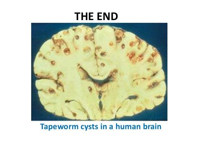 brain tapeworm - photo #13