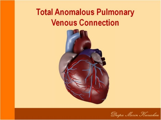 Total Anomalous Pulmonary Venous Connection TAPVC is a congenital heart defect in which the pulmonary veins do not connect...