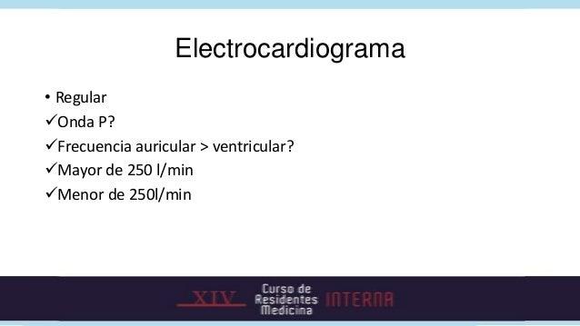 Electrocardiograma• RegularMedir Segmento R-PLargo? (50% R-R)Corto? <70 mseg o >70mseg• P no visibles? Reentrada nodal