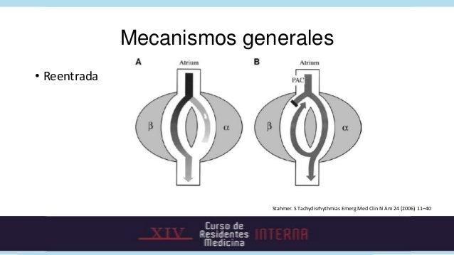 Mecanismos generales• Reentrada                            Stahmer. S Tachydisrhythmias Emerg Med Clin N Am 24 (2006) 11–40