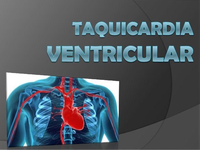  A taquicardia ventricular é um tipo de arritmia que apresenta frequência cardíaca elevada. Ela pode ocorrer como consequ...
