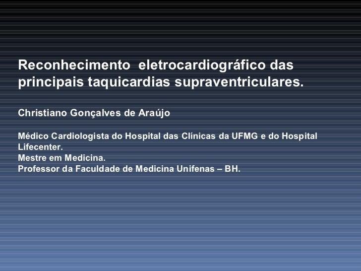 Reconhecimento  eletrocardiográfico das principais taquicardias supraventriculares. Christiano Gonçalves de Araújo Médico ...